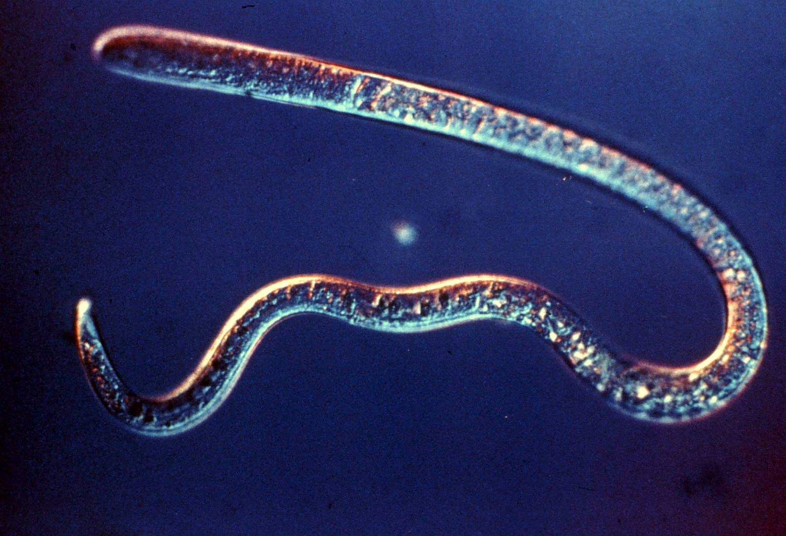 Trichinella spiralis. Female adult. Nomarski optics.